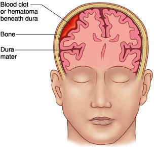Hematoma Subdural Crónico